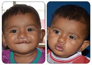 Siliguri Surgery Camp