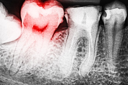 xrayed teeth