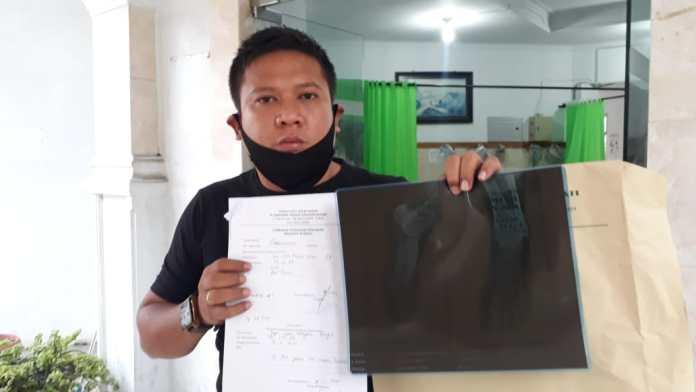 Sepri Ijon Maujana Saragih menunjukkan hasil ronsennya di RSUD dr Djasamen Saragih, pada Jumat (20/11/20) sore.(f:mistar/ferry)