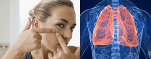 guancia alta polmoni