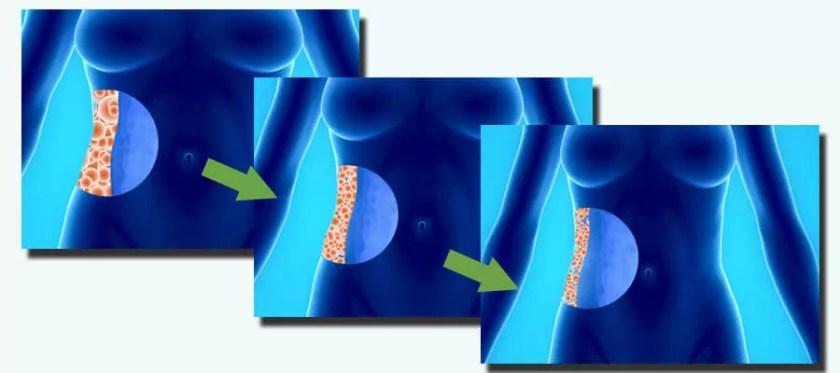Perdre du poids sans effets secondaires avec MitoSlim et NuvoCleanse