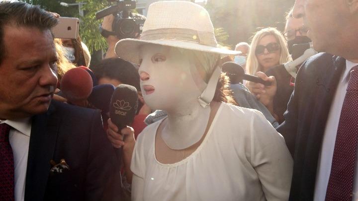Επίθεση με βιτριόλι. Παγκόσμιο κύμα συμπαράστασης στην Ιωάννα Παλιοσπύρου- Οι δωρεές ξεπέρασαν τις προσδοκίες