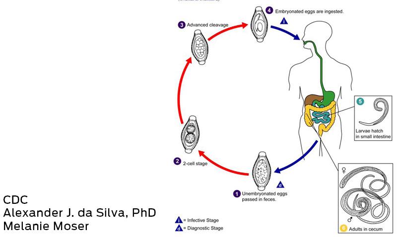 Decreasing prevalence of Trichuris trichiura (whipworm) in