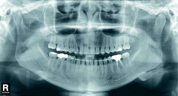 DVT  Digitale Volumentomographie  Dr Dr Ptschick