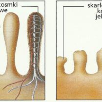 porównanie zdrowych kosmków i uszkodzonych przez gluten w chorobie trzewnej http://i-zdrowie.pl/celiakia-choroba-trzewna-dzieci/