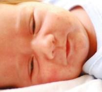 zmiany trądzikowe u niemowląt