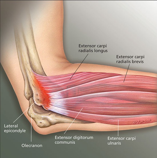 What is Tennis Elbow (Lateral Epicondylalgia)? - Melbourne ...