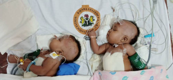 Conjoined Twins In Kwara Successfully Seperated