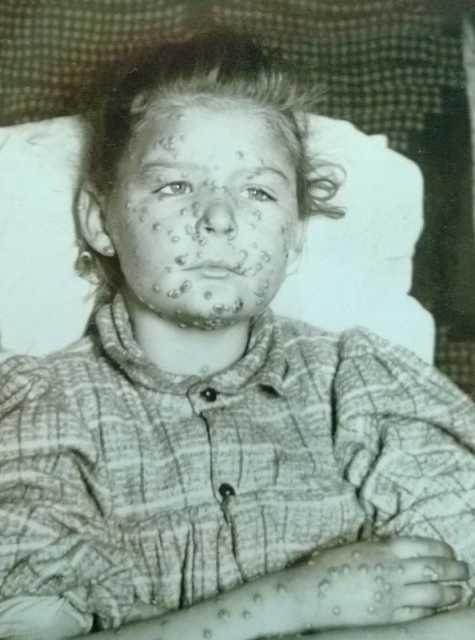 Juvenile female smallpox victim  MNopedia
