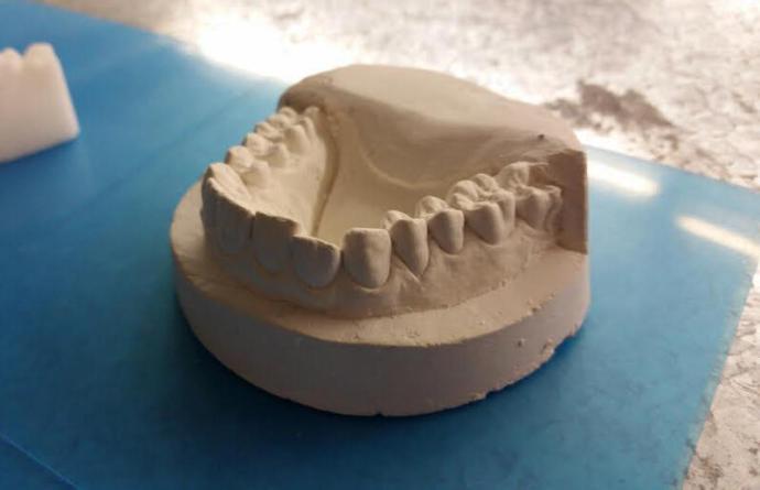 3D Druck Zahnschiene 2