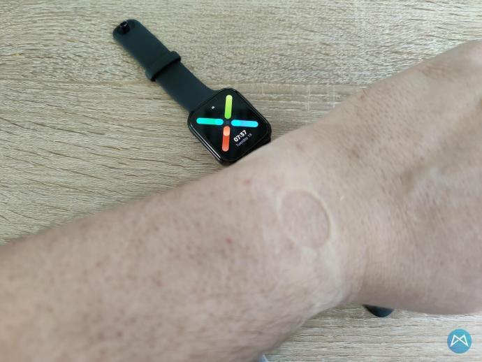 Oppo Watch 41mm Druckstelle Armband