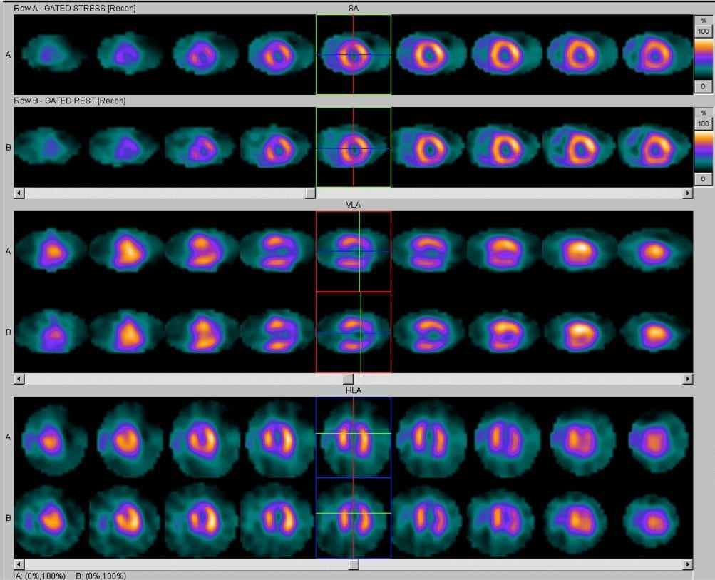Mobile Cardiac Imaging Case Study