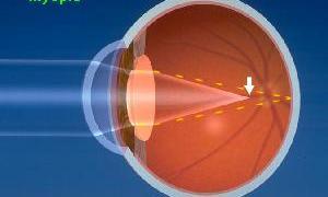 myopia_optic