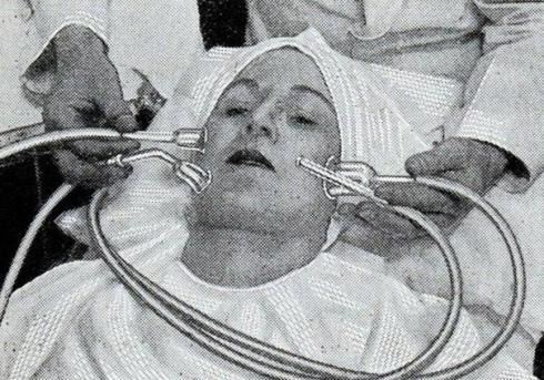 weird beauty treatmens from the past 5