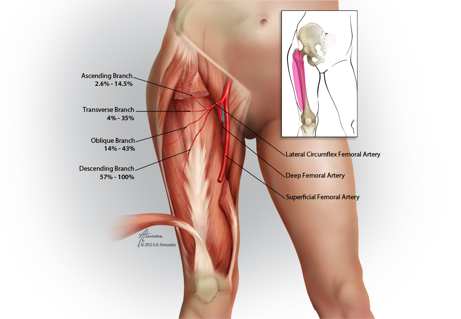 femoral artery bypass graft - ModernHeal.com