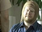 worst hairstyles balding