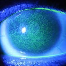隱形眼鏡併發癥