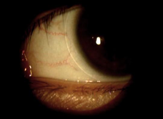 隱形眼鏡併發癥 (4)