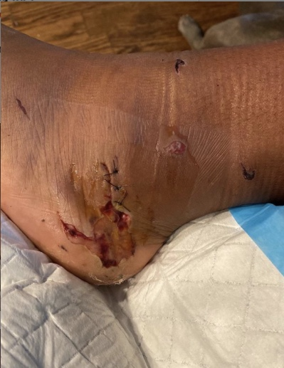 Megan Thee Stallion Shares Graphic Photos Of Foot Allegedly Shot By Tory Lanez