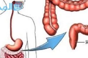 ما هي أعراض سرطان القولون