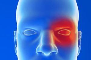 اسباب صداع العين وعلاجه