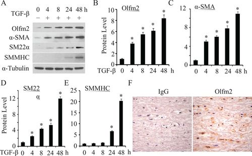 Olfactomedin 2. a novel regulator for transforming growth factor-β–induced smooth muscle differentiation of human embryonic stem cell–derived ...