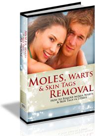 Moles, Warts & Skin Tags Removal™