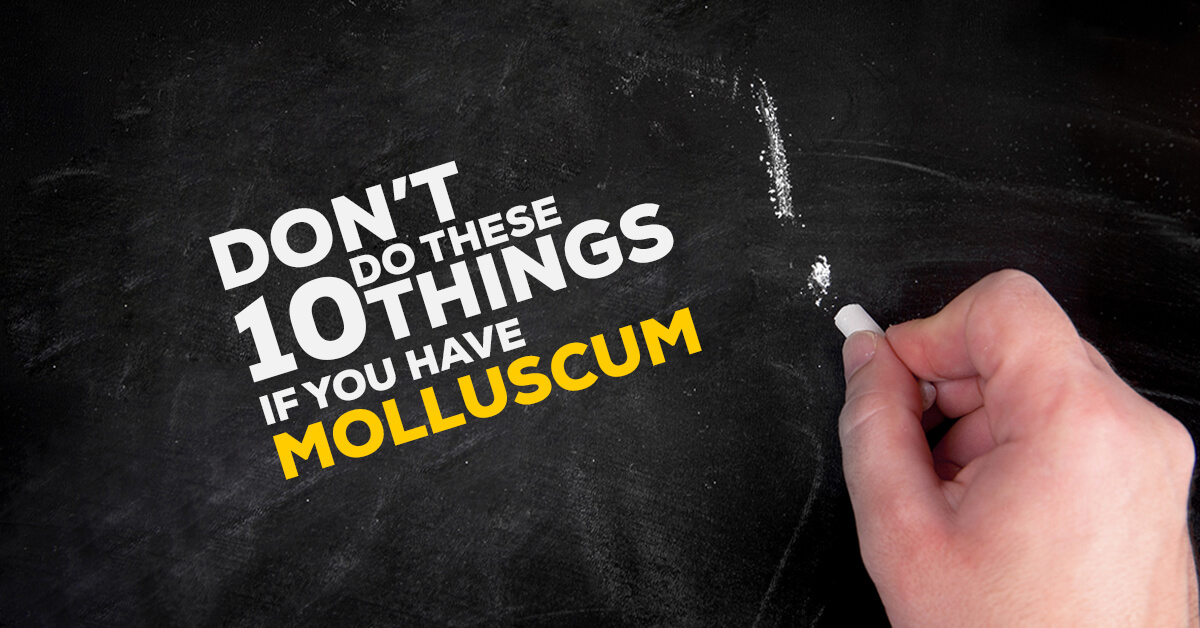 Dont Do These 10 Things If You Have Molluscum Contagiosum