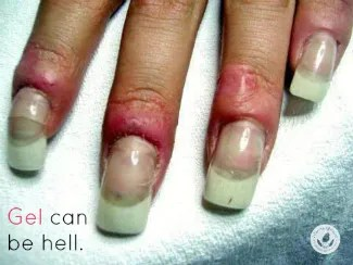 Gel Manicures Last Longer It S True But Dermatologists Them Because Of Problems With