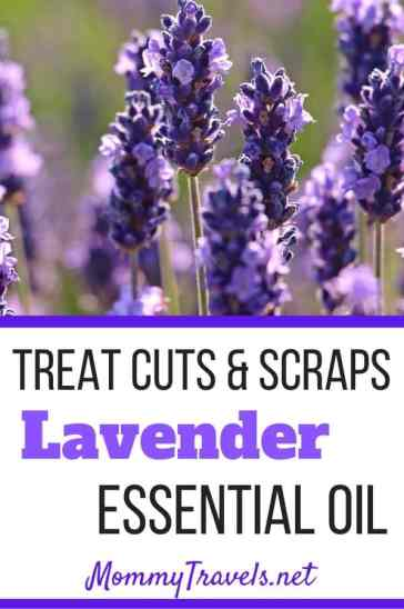Treat cuts and scraps with lavender essential oil