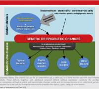 Endometriosis patofisiologia; koninckx fertil steril 2018