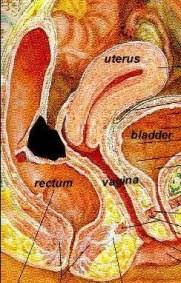 endometriosi profondo