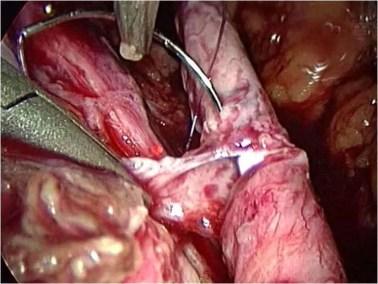 dopo escissizione dell'endometriosi del'uretere