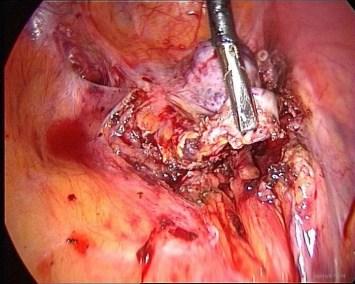 endometriosi : ovarian remnant