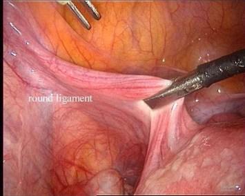 isterectomia : 1 ligamento rotondo