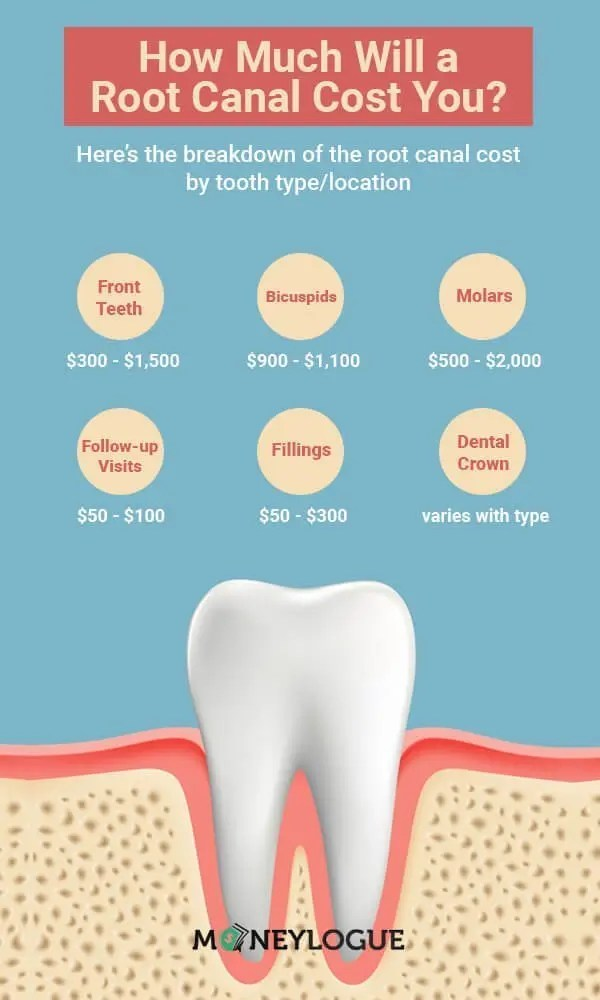 How Much Does a Root Canal Cost? It Can Be Painful