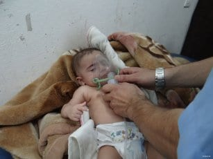 20160802_Syrians-received-treatment-in-hospital-after-chlorine-gas-attack-by-regime-in-idlib-syria-4