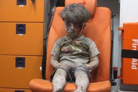 Omran-Daqneesh-5-yr-old-Syrian-boy