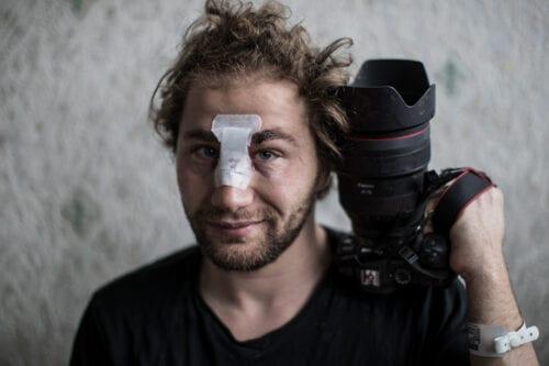 Un fotoperiodista sirio herido en la represión policial contra una…