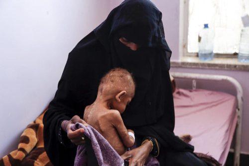 Banco Mundial: El 70% de los yemeníes corre el riesgo…