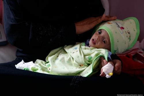 Unicef: 92% dos bebês no Iêmen estão abaixo do peso ao nascer
