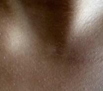 Des taches blanches sur la peau ? Est-ce un Pityriasis ...