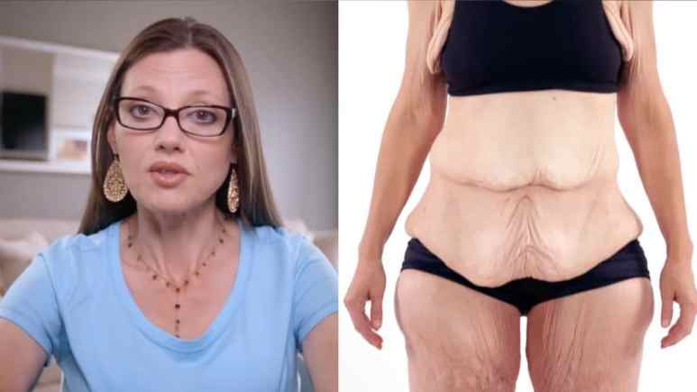 Brenda talks to the camera on Skin Tight and, right, her excess skin