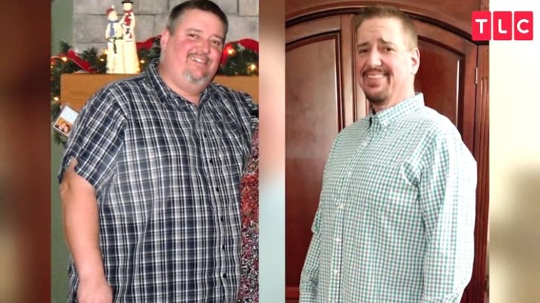 Carl's before and after pic. He also suffers from excess skin