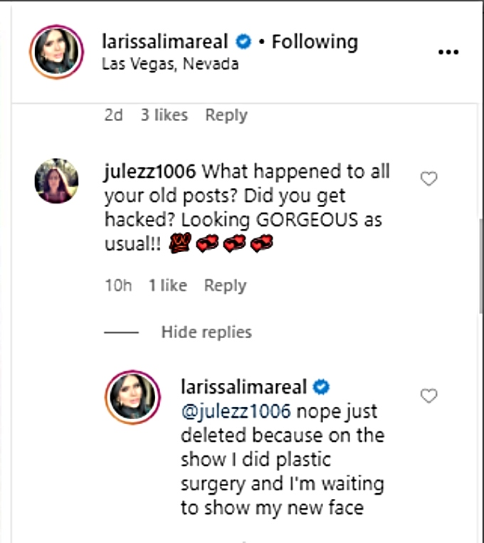 Larissa admits to plastic surgery