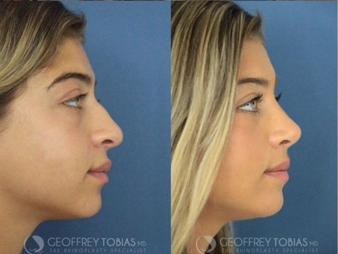 Gia Giudice's side profile after her nose job.