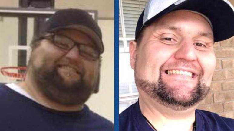 My 600-lb Life update: Where is Doug Armstrong now