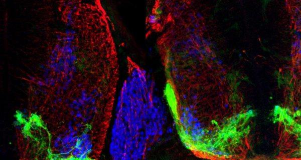 neuroscienze, motoneurone, sistema nervoso, riccardo cassin, Dario Bonanomi, cervello