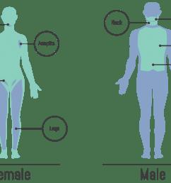 laser hair removal montrose dermatology and cosmetics dermatology body chart dermatology body diagram [ 2000 x 1153 Pixel ]