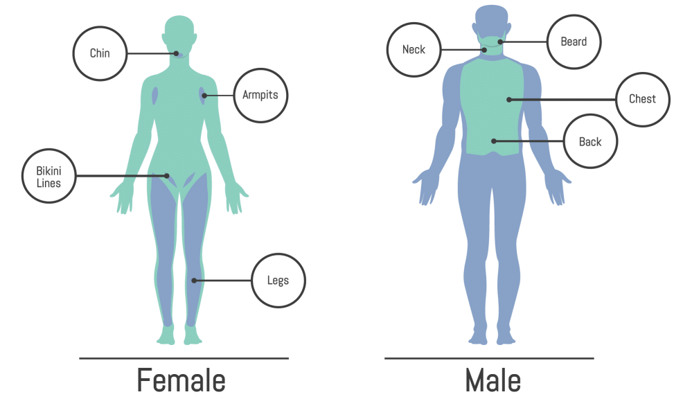 medium resolution of laser hair removal montrose dermatology and cosmetics dermatology body chart dermatology body diagram